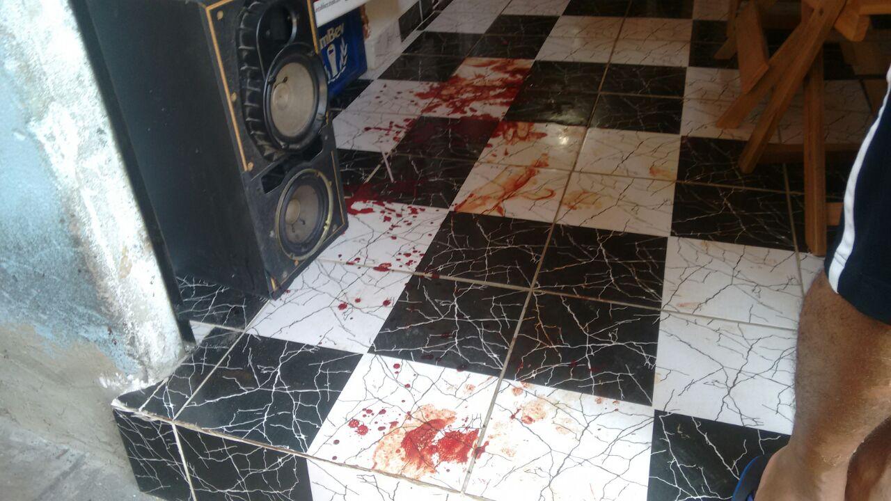 Morador do Complexo do Alemão é baleado e corre risco de perder o pé