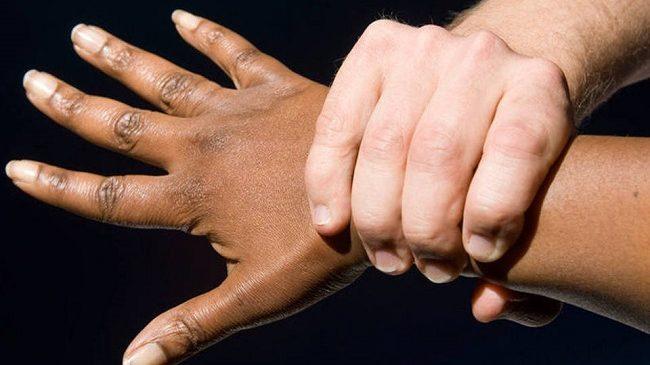 OPINIÃO – Cara gente branca, quem deve falar sobre racismo?